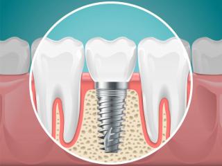 stomatology-illustrations-dental-implants-healthy-teeth-vector-health-tooth-implant-stomatology-dentistry-installation-fixture_80590-2811
